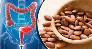 هل يحل اللوز بديلًا عن العلاج الكيميائي لمرضى سرطان القولون؟